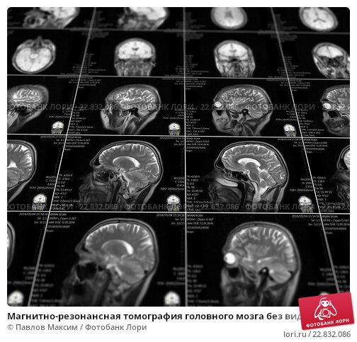мрт томограмма головного мозга г электросталь