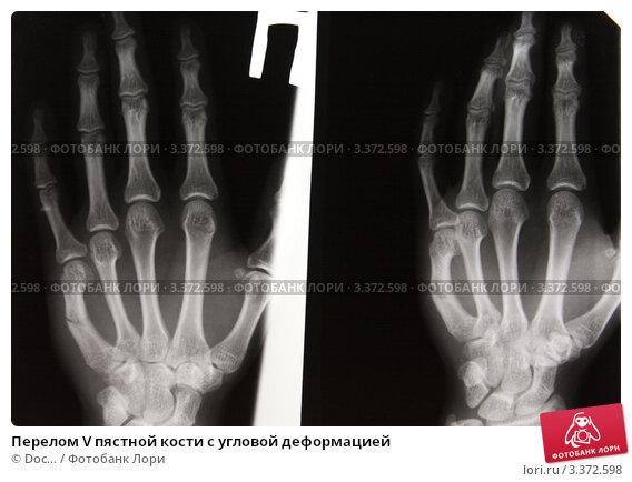 Перелом пястных костей в кисти что делать