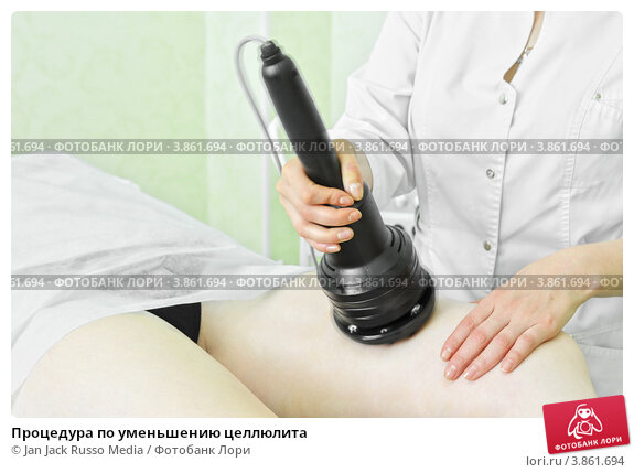 Процедуры по уменьшению целлюлита