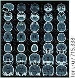 Купить «Магнитно-резонансная томограмма головного мозга», фото № 715338, снято 1 апреля 2020 г. (c) Beerkoff / Фотобанк Лори