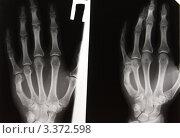 Купить «Перелом V пястной кости с угловой деформацией», эксклюзивное фото № 3372598, снято 14 апреля 2008 г. (c) Doc... / Фотобанк Лори