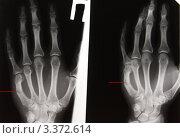 Купить «Перелом V пястной кости с угловой деформацией», эксклюзивное фото № 3372614, снято 14 апреля 2008 г. (c) Doc... / Фотобанк Лори
