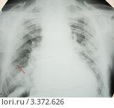 Купить «Правосторонняя очаговая пневмония», эксклюзивное фото № 3372626, снято 14 апреля 2008 г. (c) Doc... / Фотобанк Лори