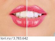 Купить «Улыбка девушка до и после отбеливания зубов», фото № 3783642, снято 20 октября 2018 г. (c) Jan Jack Russo Media / Фотобанк Лори