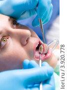 Купить «Девушка на приеме у зубного врача», фото № 3920778, снято 9 июня 2012 г. (c) CandyBox Images / Фотобанк Лори
