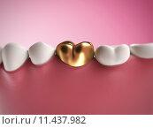 Купить «3d rendered illustration of a golden tooth», фото № 11437982, снято 18 января 2018 г. (c) PantherMedia / Фотобанк Лори