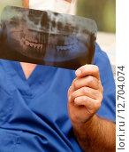 Купить «Врач с рентгеновским снимком», фото № 12704074, снято 4 июля 2008 г. (c) Морозова Татьяна / Фотобанк Лори