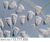 Купить «Vorticella (Vorticella spec.), colony, Germany», фото № 13777850, снято 16 октября 2019 г. (c) age Fotostock / Фотобанк Лори