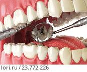 Купить «Human tooth with cariesand hole and tools. Dental searching concept. Teeth or dentures.», фото № 23772226, снято 22 мая 2018 г. (c) Maksym Yemelyanov / Фотобанк Лори