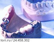 Купить «Cog technology, set dentures, gypsum model, part prosthesis, dentist, dentistry, dental laboratory, gypsum impressions, models, bite, cogs, cog models...», фото № 24458302, снято 22 декабря 2005 г. (c) mauritius images / Фотобанк Лори