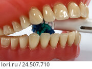 Купить «Bite prosthesis, electric toothbrush,», фото № 24507710, снято 13 ноября 2009 г. (c) mauritius images / Фотобанк Лори