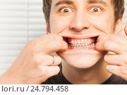 Купить «Portrait of cute young man with orthodontic braces», фото № 24794458, снято 27 ноября 2016 г. (c) Сергей Новиков / Фотобанк Лори
