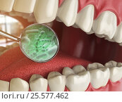 Купить «Bacterias and viruses around tooth. Dental hygiene medical concept.», фото № 25577462, снято 16 марта 2018 г. (c) Maksym Yemelyanov / Фотобанк Лори