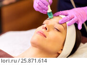 Купить «woman having microdermabrasion facial treatment», фото № 25871614, снято 26 января 2017 г. (c) Syda Productions / Фотобанк Лори