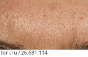 Scars from acne on the skin of a man. Стоковое видео, видеограф Илья Шаматура / Фотобанк Лори