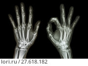 Купить «X-ray both hands with OK sign», фото № 27618182, снято 22 августа 2018 г. (c) PantherMedia / Фотобанк Лори