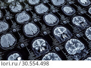 Magnetic resonance imaging. Стоковое фото, фотограф Tryapitsyn Sergiy / Фотобанк Лори