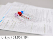 Пробирки. Стоковое фото, фотограф Вера Папиж / Фотобанк Лори