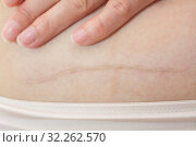 Купить «Рубец на коже от шва после операции кесарево сечение. Линия шрама на женском животе и рука. Рождение ребенка через разрез на матке.», фото № 32262570, снято 8 октября 2019 г. (c) Дорощенко Элла / Фотобанк Лори