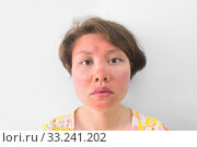 Sunburnt face. Стоковое фото, фотограф Александр Подшивалов / Фотобанк Лори