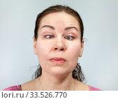 Женщина со скошенными к носу глазами. Стоковое фото, фотограф Кекяляйнен Андрей / Фотобанк Лори