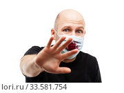 Bald head man wearing bloody cough respiratory protective medical mask. Стоковое фото, фотограф Илья Андриянов / Фотобанк Лори