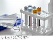 Купить «beakers with coronavirus blood test in holder», фото № 33740874, снято 3 апреля 2020 г. (c) Syda Productions / Фотобанк Лори