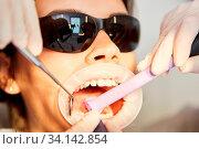Patient mit weit offenem Mund bei einer Behandlung mit dem Bohrer gegen Karies oder Zahnstein. Стоковое фото, фотограф Zoonar.com/Robert Kneschke / age Fotostock / Фотобанк Лори