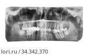Film with X-ray image of human jaws with dental crown on teeth isolated... Стоковое фото, фотограф Zoonar.com/Valery Voennyy / easy Fotostock / Фотобанк Лори