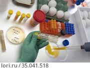 Scientific sampling of eggs in poor condition, analysis of avian ... Стоковое фото, фотограф Felipe Caparrós / age Fotostock / Фотобанк Лори