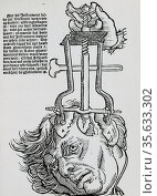 Trephination: elevator for removing fragments of broken skull. Woodcut from a book on field surgery, 1593. Редакционное фото, агентство World History Archive / Фотобанк Лори
