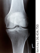 Knie links von vorn im Röntgenbild. Стоковое фото, фотограф Zoonar.com/Birgit Reitz-Hofmann / easy Fotostock / Фотобанк Лори