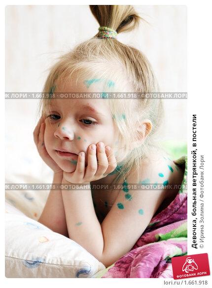 Купить «Девочка, больная ветрянкой, в постели», фото № 1661918, снято 27 апреля 2010 г. (c) Ирина Золина / Фотобанк Лори