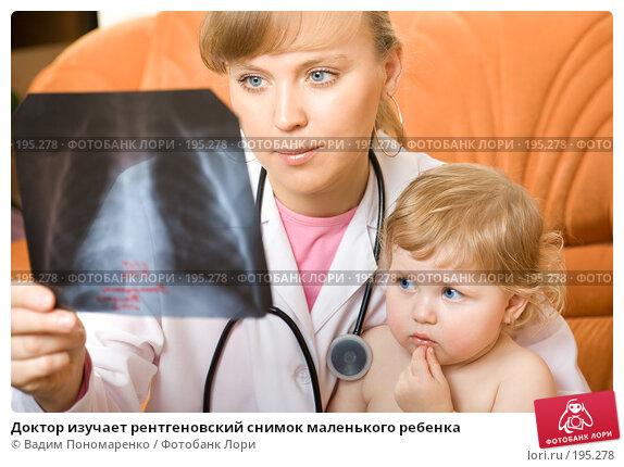 Доктор изучает рентгеновский снимок маленького ребенка, фото № 195278, снято 19 января 2008 г. (c) Вадим Пономаренко / Фотобанк Лори