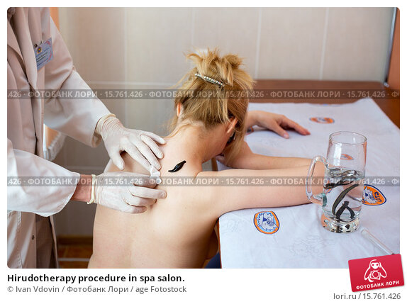 Купить «Hirudotherapy procedure in spa salon.», фото № 15761426, снято 21 июня 2019 г. (c) age Fotostock / Фотобанк Лори