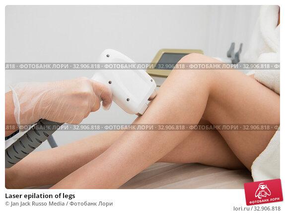 Laser epilation of legs. Стоковое фото, фотограф Jan Jack Russo Media / Фотобанк Лори
