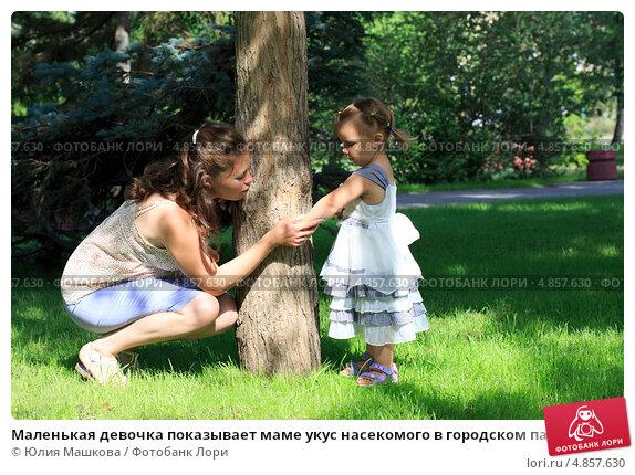 Купить «Маленькая девочка показывает маме укус насекомого в городском парке», фото № 4857630, снято 12 июля 2013 г. (c) Юлия Машкова / Фотобанк Лори
