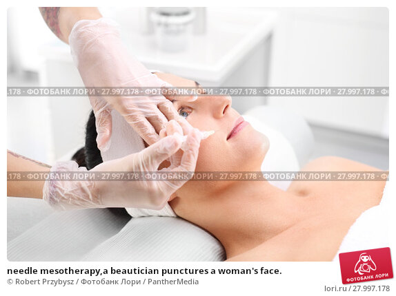 Купить «needle mesotherapy,a beautician punctures a woman's face.», фото № 27997178, снято 18 апреля 2019 г. (c) PantherMedia / Фотобанк Лори