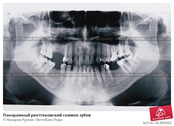 Панорамный снимок зубов тюмень цены