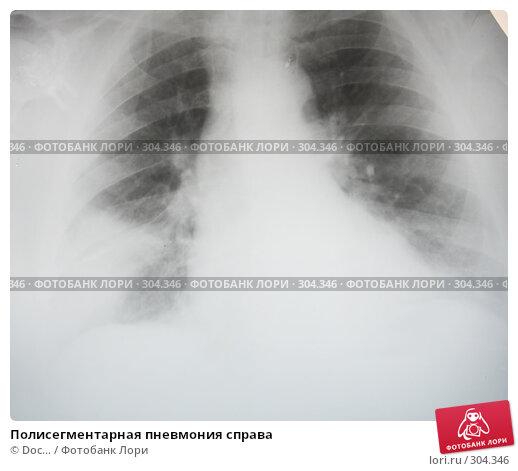 Полисегментарная пневмония справа, фото № 304346, снято 30 мая 2008 г. (c) Doc... / Фотобанк Лори