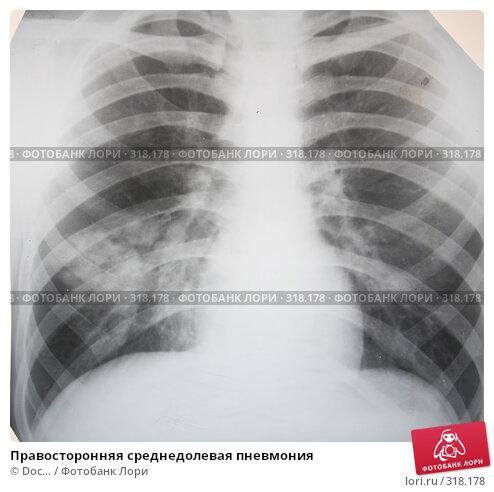 Купить «Правосторонняя среднедолевая пневмония», фото № 318178, снято 10 июня 2008 г. (c) Doc... / Фотобанк Лори