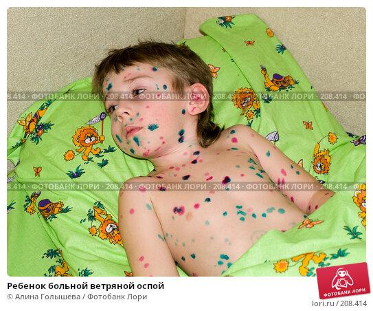 Купить «Ребенок больной ветряной оспой», эксклюзивное фото № 208414, снято 23 февраля 2008 г. (c) Алина Голышева / Фотобанк Лори