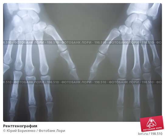 Рентгенография, фото № 198510, снято 9 февраля 2008 г. (c) Юрий Борисенко / Фотобанк Лори