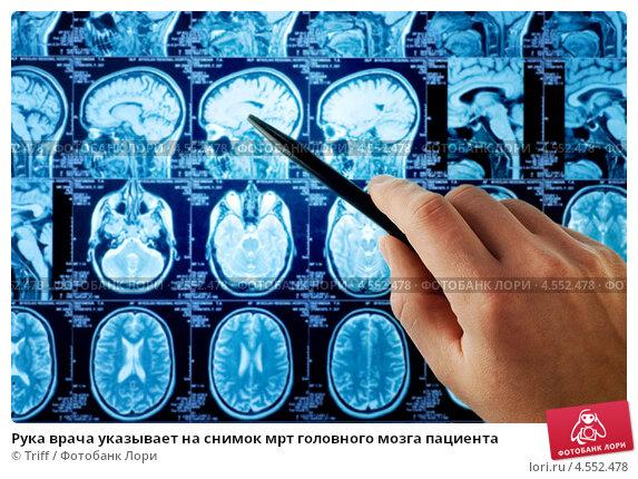 Купить «Рука врача указывает на снимок мрт головного мозга пациента», фото № 4552478, снято 20 сентября 2019 г. (c) Triff / Фотобанк Лори
