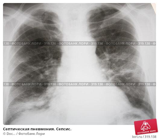Септическая пневмония. Сепсис., фото № 319138, снято 11 июня 2008 г. (c) Doc... / Фотобанк Лори
