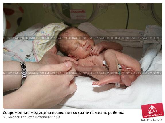 Современная медицина позволяет сохранить жизнь ребенка, фото № 62574, снято 14 мая 2007 г. (c) Николай Гернет / Фотобанк Лори