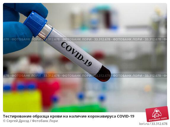 Тестирование образца крови на наличие коронавируса COVID-19. Стоковое фото, фотограф Сергей Дрозд / Фотобанк Лори